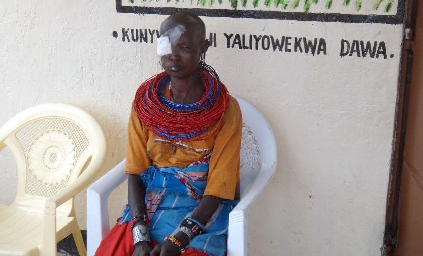 Musuri - Kvinne med øyeskade venter